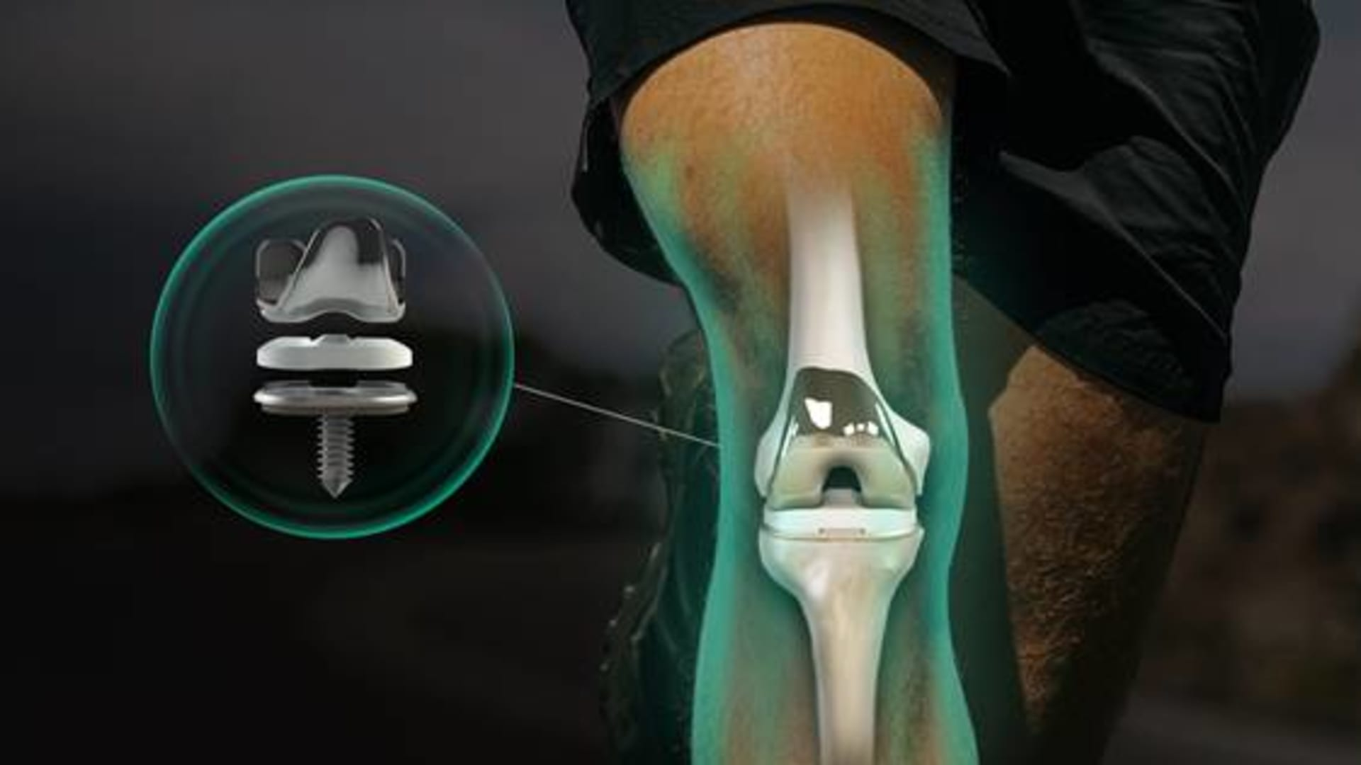 Breakthrough joint surgery tech lifts us out of the dark ages